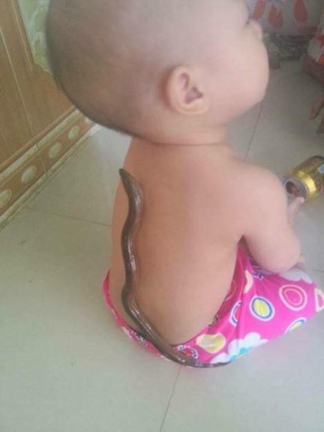 Tại sao trẻ hạ sốt khi cho con lươn bám vào lưng?