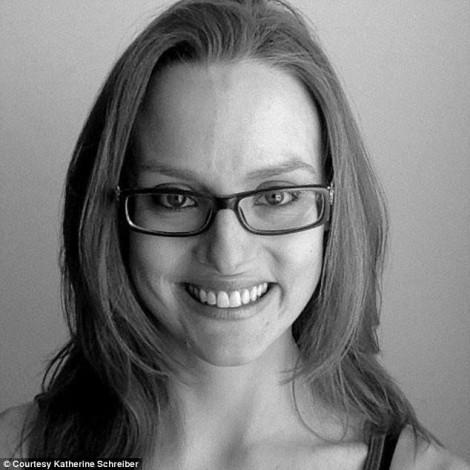 Người phụ nữ nghiện tập thể dục đến gãy xương, mất kinh nguyệt