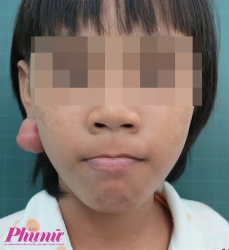 Hàng xóm lấy kim may đồ xỏ tai, bé gái nổi sẹo lồi to như quả trứng
