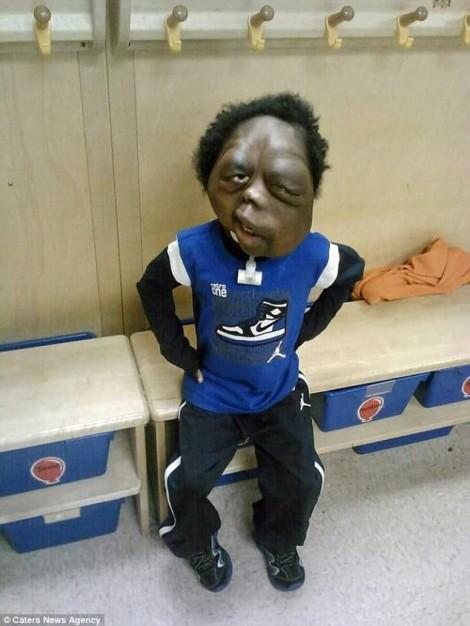 Cậu bé bị gọi là quái vật vì khối u khổng lồ che kín mặt