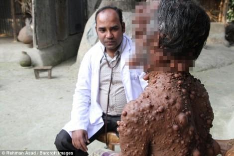 Người đàn ông bị xa lánh vì hàng trăm khối u mọc khắp cơ thể