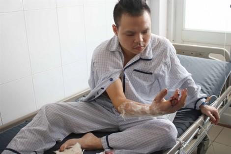 Phẫu thuật nối ngón tay bị máy xay thịt cắt lìa