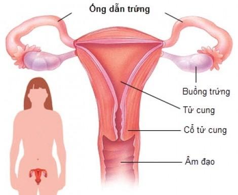 Mỗi năm Việt Nam có 1.200 phụ nữ bị ung thư buồng trứng