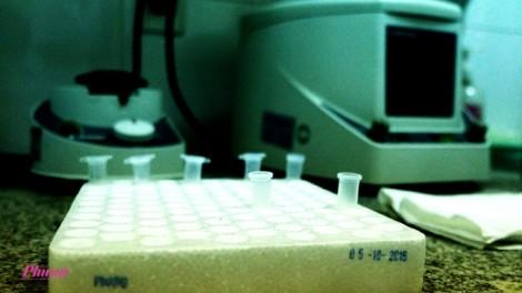 Bệnh viện Ung Bướu khẳng định công ty rớt thầu do không đạt năng lực tài chính