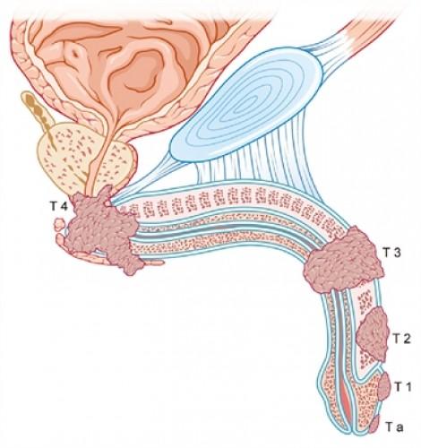 Chữa ung thư dương vật mà không cần phẫu thuật cắt bỏ