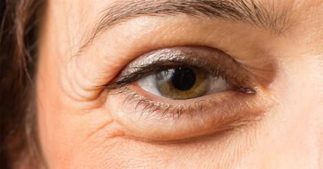 5 triệu chứng thiếu vitamin biểu hiện trên gương mặt
