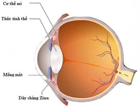 Tác hại của đục thủy tinh thể, trẻ có nguy cơ không hồi phục thị giác