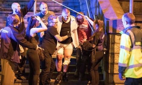 Những vụ tai nạn thương tâm trên sân khấu ca nhạc trong lịch sử làng giải trí thế giới