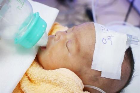 Bệnh viện quận Thủ Đức đỡ đẻ và nuôi dưỡng thành công trẻ sinh non chỉ 1,5kg
