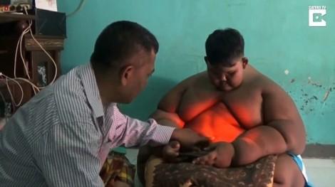 Bé trai 10 tuổi nặng 190kg vì nghiện nước ngọt và mì ăn liền