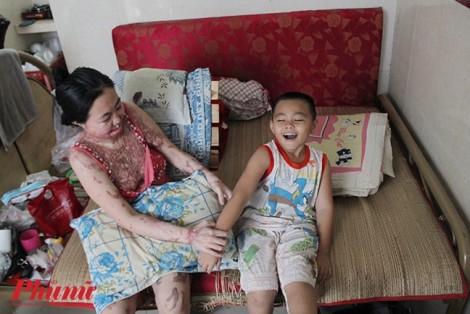 Bệnh viện Quận 2 nhận mổ miễn phí cho 'người mẹ ma' do axit