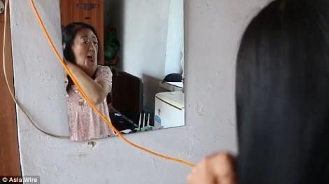 Người phụ nữ 'mặt voi' muốn tự sát vì phẫu thuật thất bại