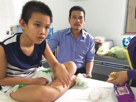 Bệnh viện Nhi Đồng 2 TP.HCM: Trẻ tàn phế do tổn thương não khi chụp DSA