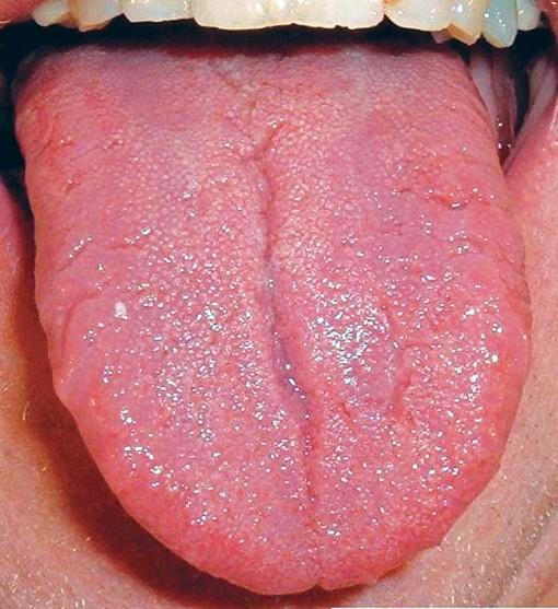 Xem lưỡi đoán bệnh bằng y học cổ truyền