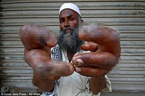 Bị kỳ thị vì đôi tay dị dạng, cụ ông phải ra đường ăn xin