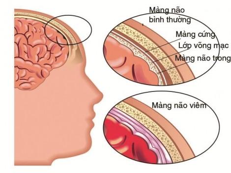 Bé trai 3 tuổi mắc bệnh dại, bác sĩ chẩn đoán… viêm não