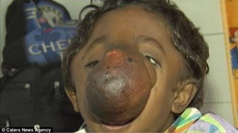 Cậu bé mồ côi có chiếc mũi dị dạng được tôn thờ như thánh sống