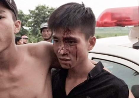 Nhóm thanh niên xô sát với CSGT, một người bị thương