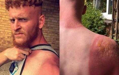 Làm việc ngoài trời suốt 7 tiếng, người đàn ông bị bỏng nắng kinh hoàng