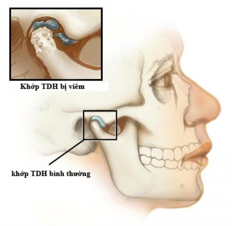 Sau một đêm thức dậy, răng miệng đau nhức dữ dội: Bệnh gì?