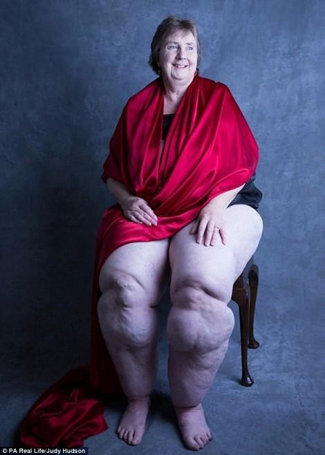 Bệnh lạ khiến người phụ nữ có bắp chân to quá khổ
