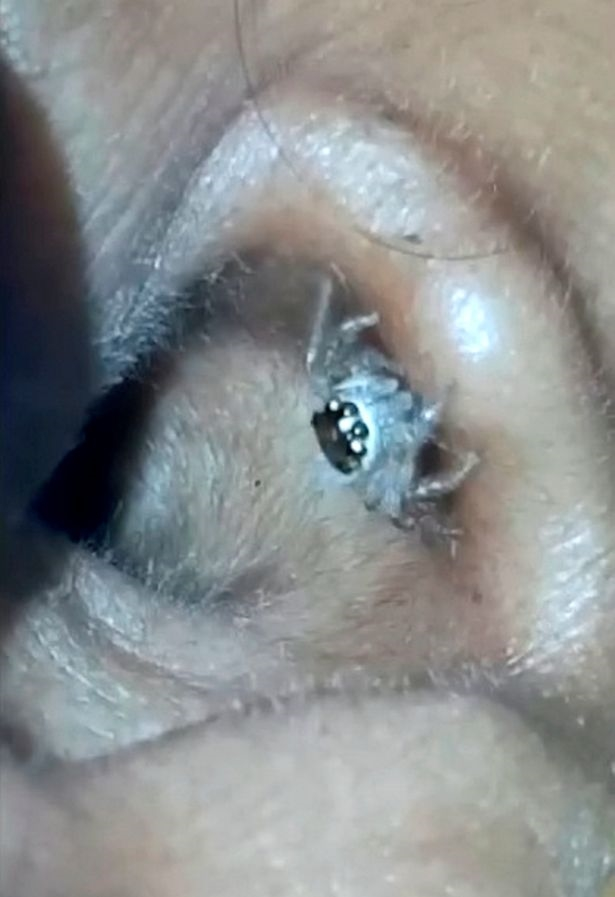 Ron toc gay khi nhen lam to trong lo tai nguoi