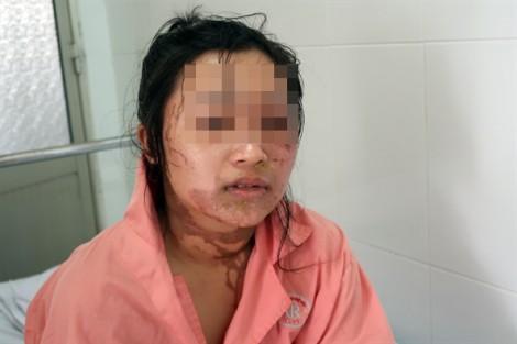 Gã chồng nắm đầu tạt axit vợ vì dám đòi ly hôn