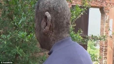 Thợ hớt tóc cắt trúng da đầu, khiến da người đàn ông xù xì như vỏ cây suốt 60 năm