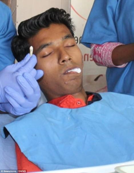 Nhổ bỏ chiếc răng dài nhất thế giới