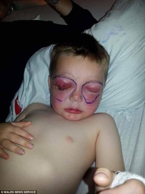 Bé trai suýt chết vì vết thương nhỏ ở mắt