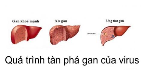 Mỗi năm Việt Nam có 22.000 người mắc viêm gan siêu vi C