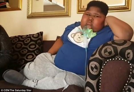 Bé trai béo phì ăn cả giấy vệ sinh khi đói