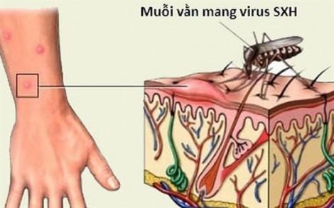 Bệnh viện Nhi Đồng TP.HCM dành 50 giường phục vụ bệnh nhi sốt xuất huyết