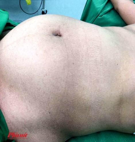 Tưởng mập bụng, bất ngờ nhận kết quả u buồng trứng 5kg