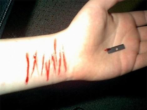 Nữ sinh tự cắt 16 vết thương trên tay vì… không được đi du học