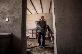 Người cha già một mình lẻ bóng, chăm con gái bại não suốt 40 năm