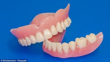 Ngồi xe lăn suốt đời vì dùng keo dán răng giả 15 năm