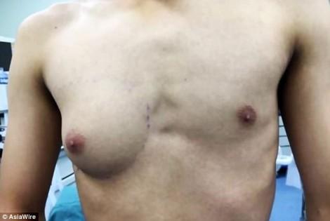 Chàng trai phát triển ngực như phụ nữ vì ăn quá nhiều đồ ăn nhanh