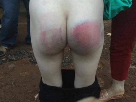 Bé gái 8 tuổi bị đánh bầm mông khi đi học kèm tiếng Anh