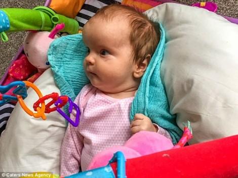Tạo hình hộp sọ cho em bé có đầu như người ngoài hành tinh
