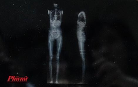 Vị bác sĩ già hồi sinh cô gái 20 năm không đi được