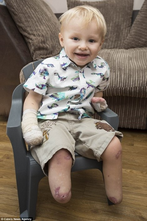 Nghị lực sống của bé trai bị cắt bỏ hết tay chân