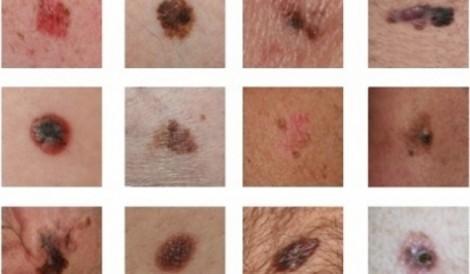 Những vết phát ban có thể là dấu hiệu ung thư da