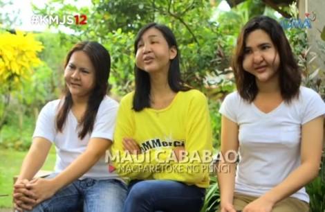 3 cô gái bị biến dạng mặt nghiêm trọng vì tiêm chất làm đầy giá rẻ