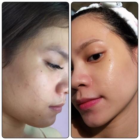Cách tìm kiếm các bước dưỡng da phù hợp nhất giúp da trắng sáng, căng mịn