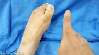 Nạn nhân đánh bom được ghép ngón chân vào bàn tay
