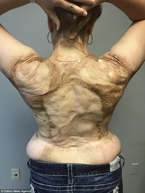 Người phụ nữ phải phẫu thuật 30 lần để xóa sạch làn da phù thủy