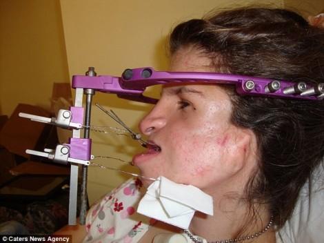 Cô gái phẫu thuật mặt dị dạng với 56 lần ghép xương