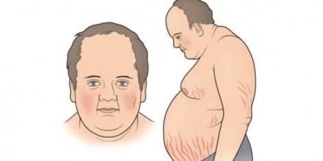 Tưởng béo phì, hóa ra mắc bệnh cực hiếm