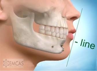 Vụ hôn mê sau gọt cằm: Bệnh nhân có dấu hiệu tổn thương não